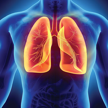 low dose CT lung screening